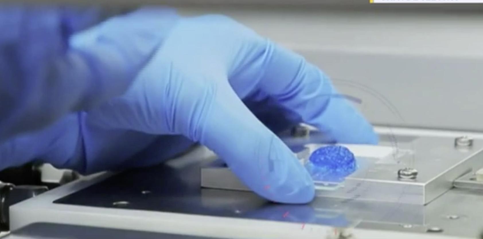 Impression 3D pour lutter contre le cancer